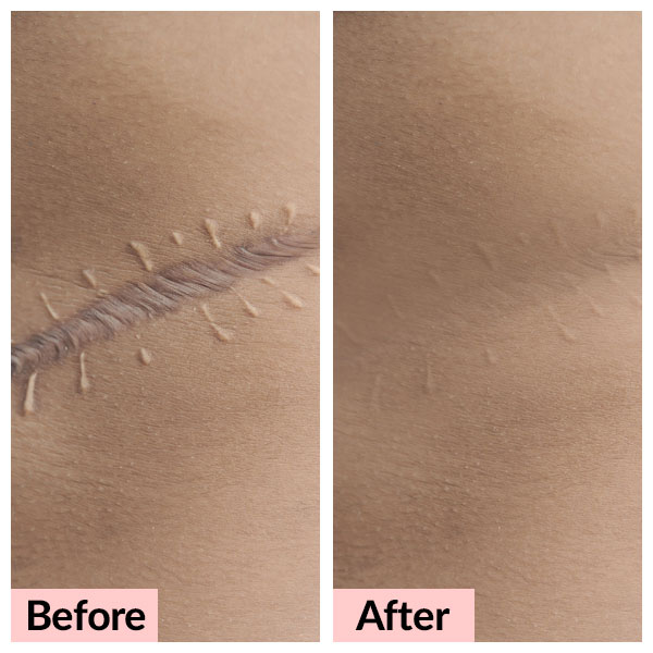 laser-treatments_scar-removal-01_v1