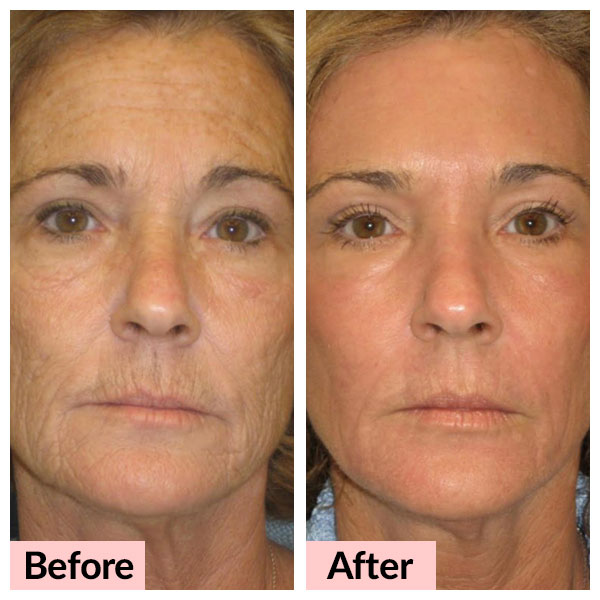 laser-treatments_skin-resurfacing-01_v1