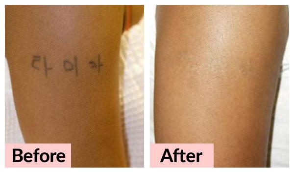 laser-treatments_tattoo-removal-01_v2